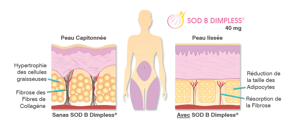 SOD B Dimpless®