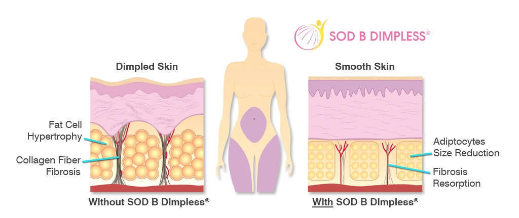 SOD B Dimpless double action