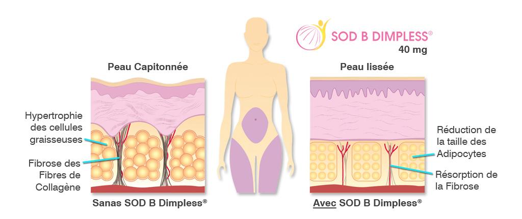 SOD B Dimpless®